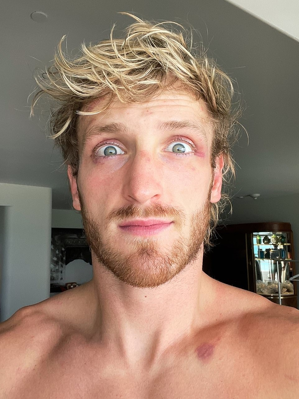 The social media star, who lost his only professional fight to KSI in 2019, shared a picture of him sporting minor bruises around his eyes and one at the top of his chest alongside the caption: 'not too bad'. Rules stated there could be no official winner but that there could be a knockout, determined by the referee. The fight went the distance but both boxers have been criticized by fans, who paid up £17 each to watch the fight in the UK and about $50 to watch in the US.